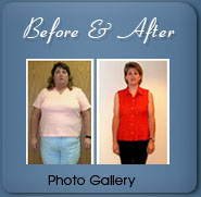 Weight Loss Before and After Gallery